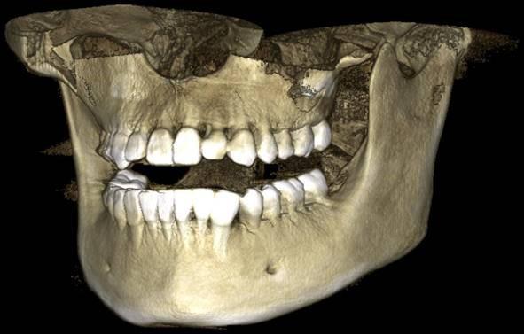 3д снимок челюсти