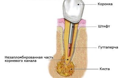 Киста зубная фото